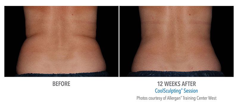 CoolSculpting Before and After